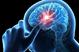 چگونه می توانیم به روند بهبود بیمار پس از سكته مغزی کمک کنیم ؟